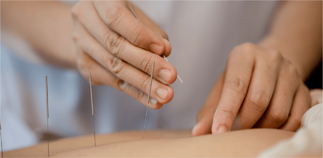 Recurso 3medical acupunture & massage